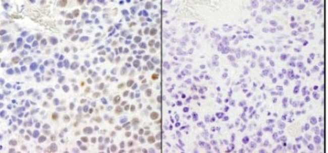 anti-RPA2 (p Ser4, p Ser8), Polyclonal, Novus Biologicals 0.1mL; Unlabeled:Life